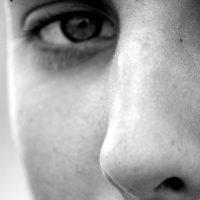 Dermatite Seborroica al naso