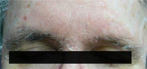 dermatiteseborroica.it - dermatite seborroica alla fronte